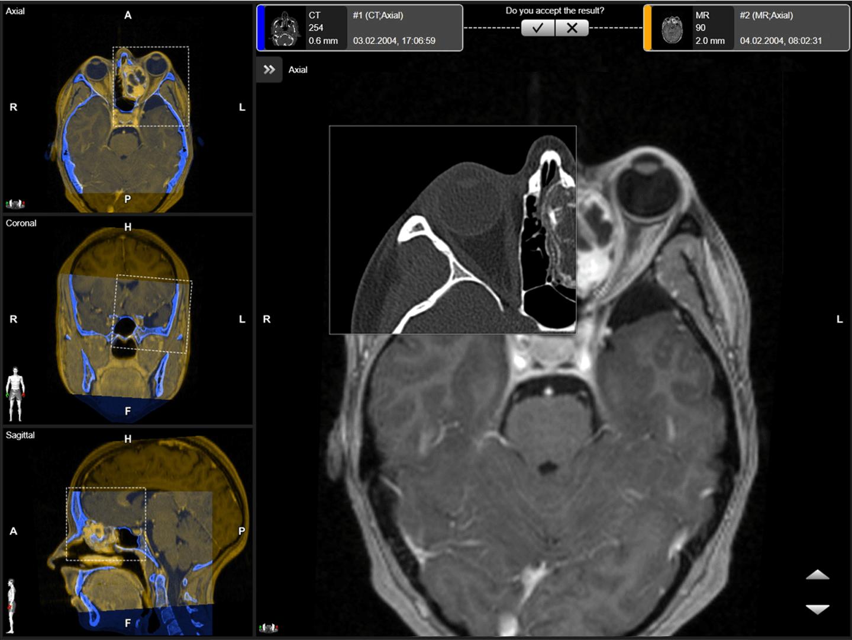 Screenshot der Elements Image Fusion-Software mit großem Schwarz-Weiß-Scan des Gehirns auf der rechten und drei kleineren fusionierten Bildern in blau und orange (aus unterschiedlichen Blickwinkeln) auf der linken Seite.