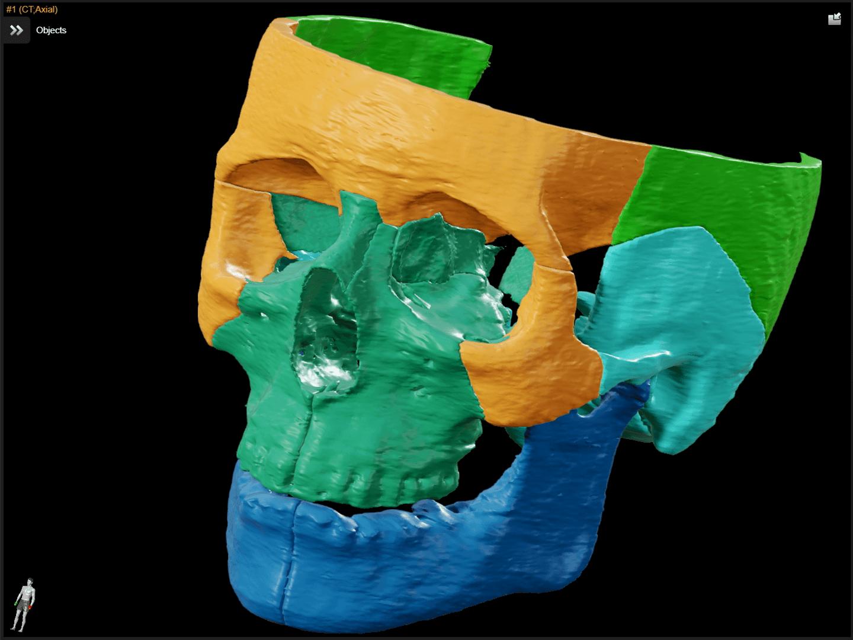 3D-Rendering mit Frontalansicht eines Schädels. Verschiedene Knochenregionen sind in unterschiedlichen Farben zur Planung eines MKG-Eingriffs hervorgehoben.