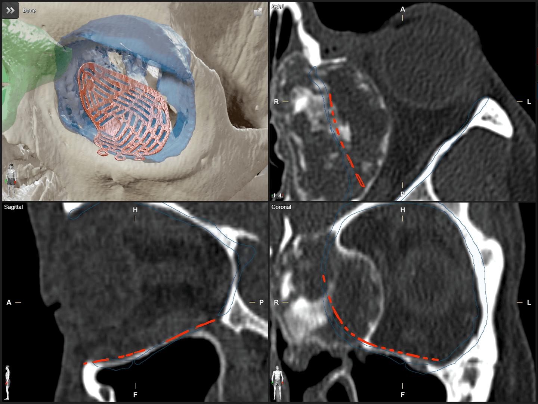 Screenshot einer Rasteransicht, die verschiedene Winkel eines Schädels mit orbitalem Implantat zeigt, zur Planung von rekonstruktiven MKG-Eingriffen.
