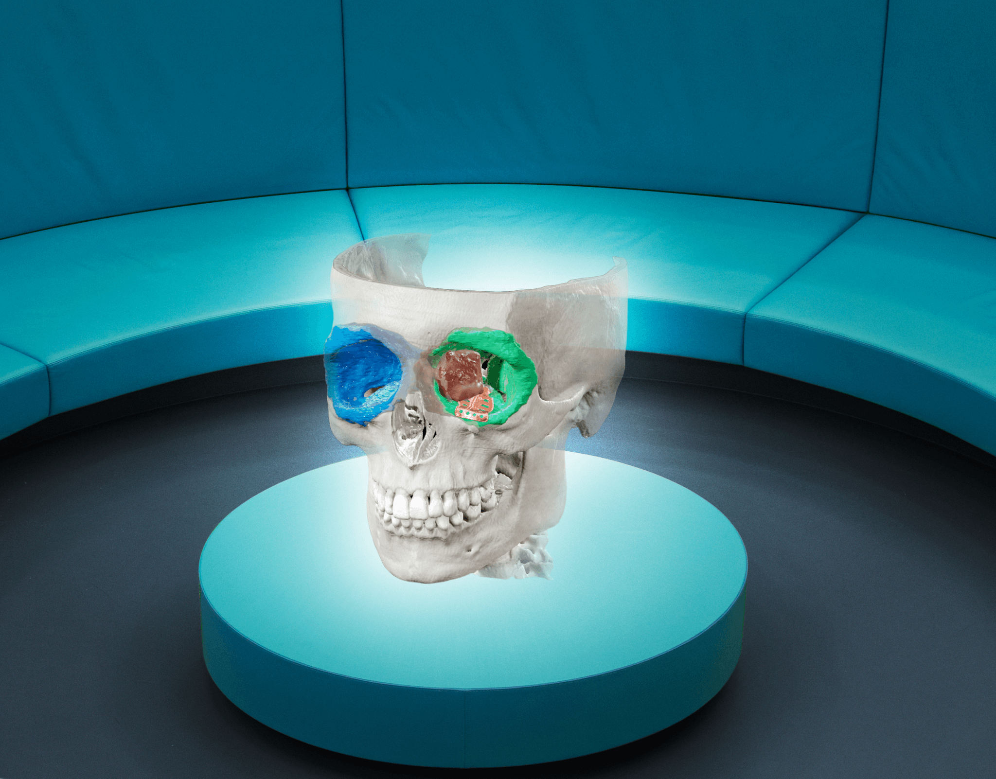 Mixed-Reality-3D-Rendering eines Schädels mit segmentierten Knochenobjekten und einem Implantat in unterschiedlichen Farben, zur Planung von MKG-Eingriffen