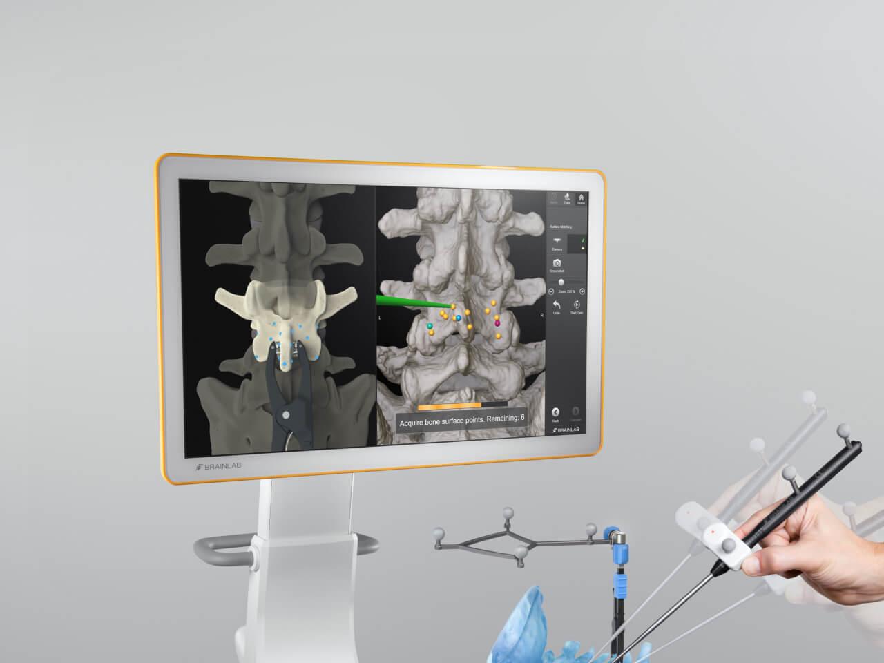 Manuelle, punktbasierte Registrierung auf der Knochenoberfläche für bildgestützte Eingriffe