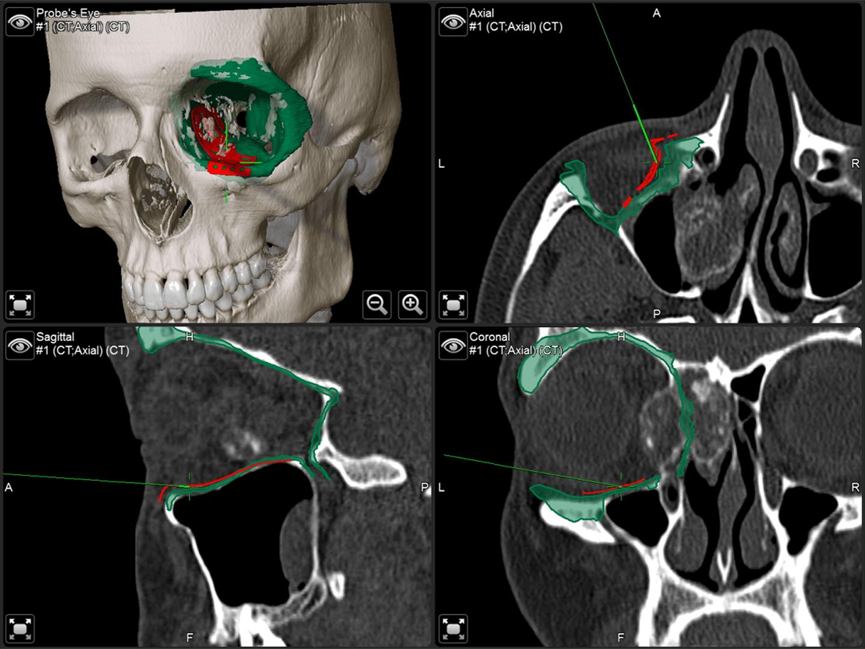 Cuatro vistas de un cráneo del software de navegación quirúrgica utilizado durante la intervención maxilofacial