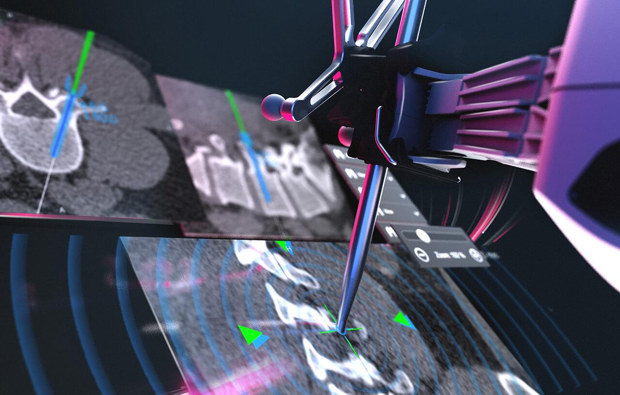 Технология роботизированной хирургии