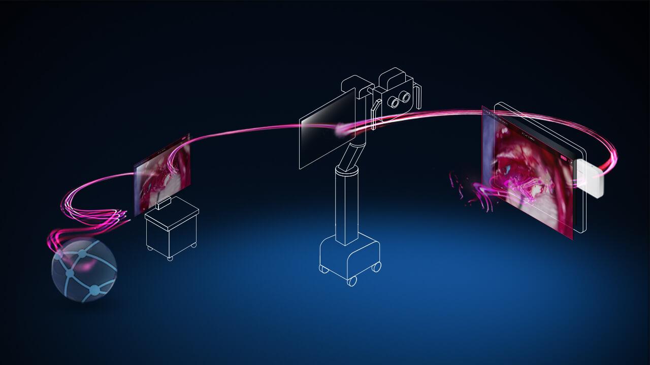 Ondas na cor rosa viajam entre um computador mostrando um ícone de servidor, um endoscópio, um microscópio e o sistema de navegação cirúrgica, indicando a integração desses sistemas