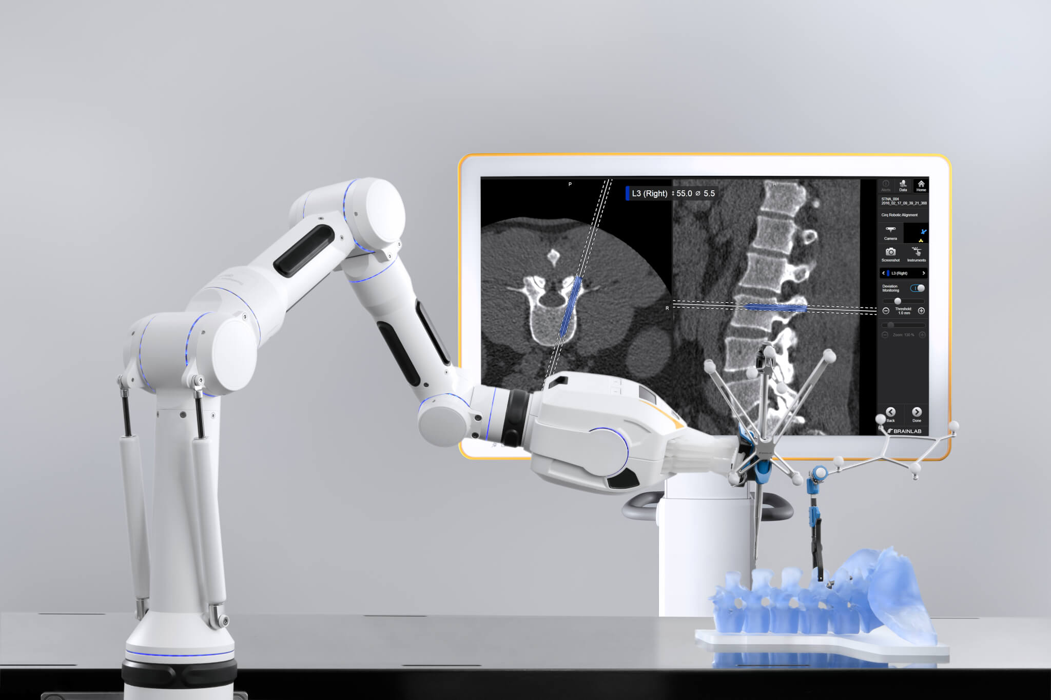 Robotic spine surgery with Cirq surgical assistant